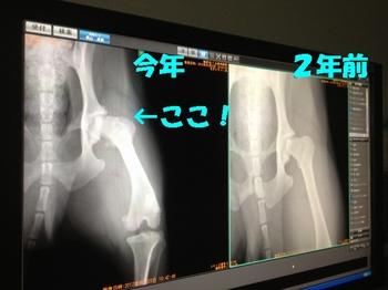 股関節の画像.jpg